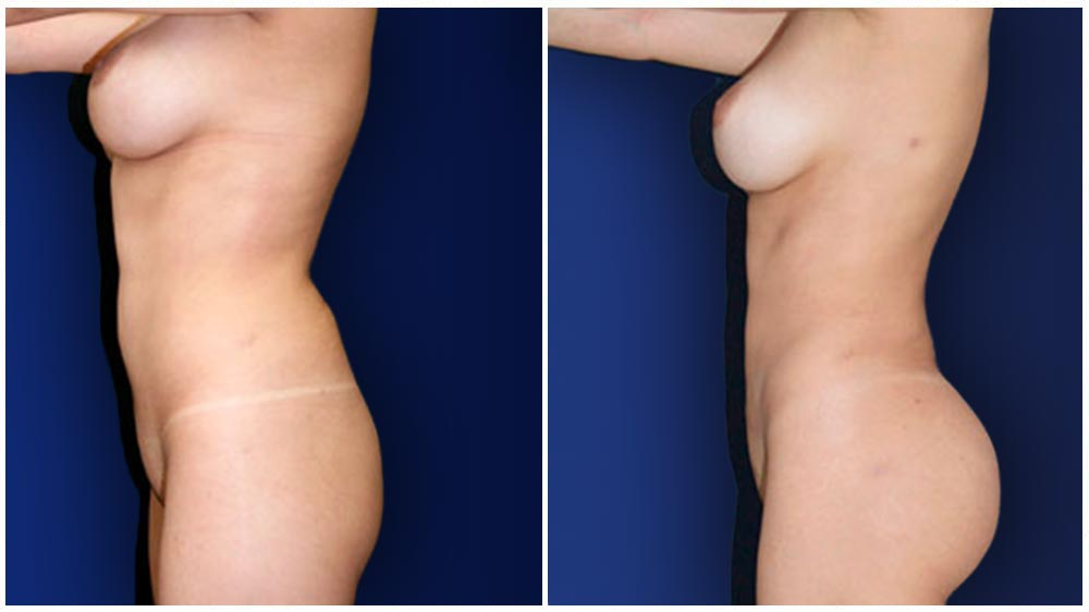 Dallas Liposuction Specialty Clinic -  Fat Transfer to Buttocks Patient