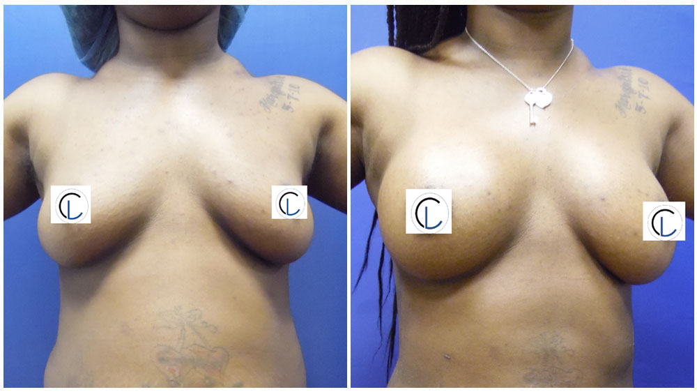 Saline Implants - Breast Enhancement Patient