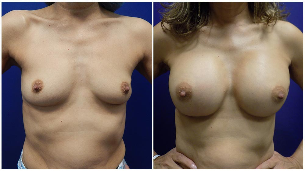 Bresat Augmentation using Implants