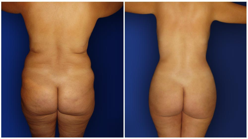 0-march-tummytuck-3