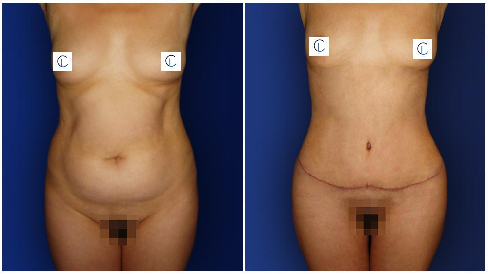 0-march-tummytuck-4