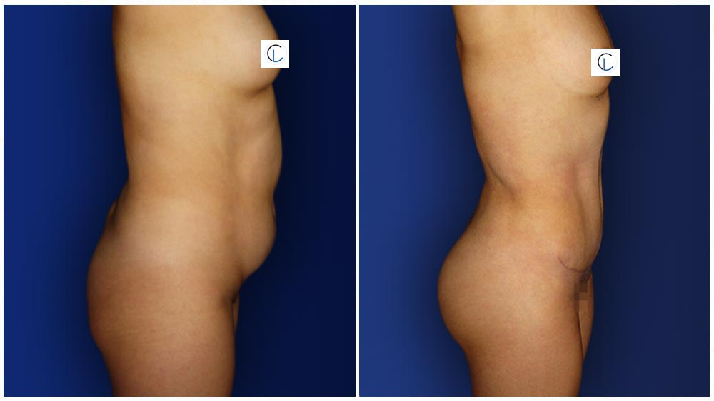 0-march-tummytuck-5