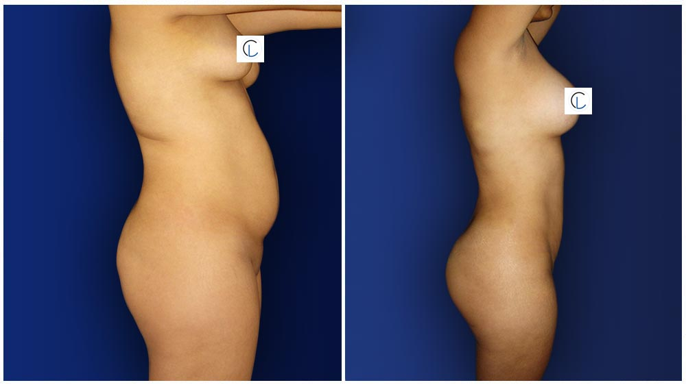 0-march-tummytuck-6