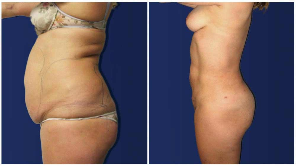 Liposuction Female Patient (32 years)